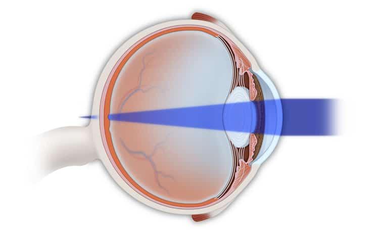 Hyperopia Treatment NYC   Farsightedness Treatment NYC