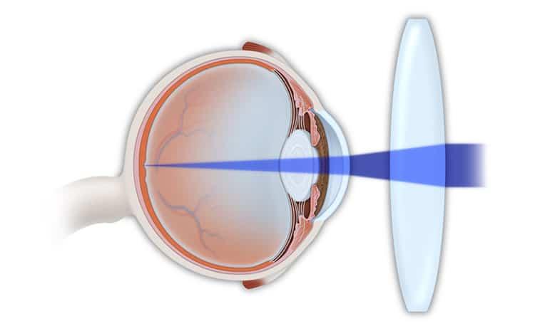 Hyperopia Treatment Manhattan   Ophthalmologist Manhattan