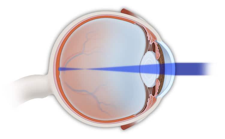 Eye Suergeon NYC   Myopia Treatment NYC
