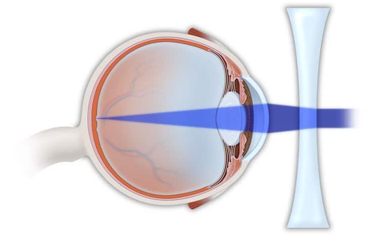 Myopia Correction NYC   Eye Doctor Manhattan